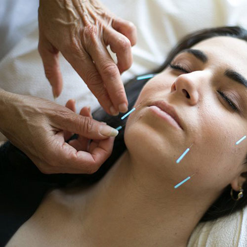 ali optimal wellness Acupuncture image