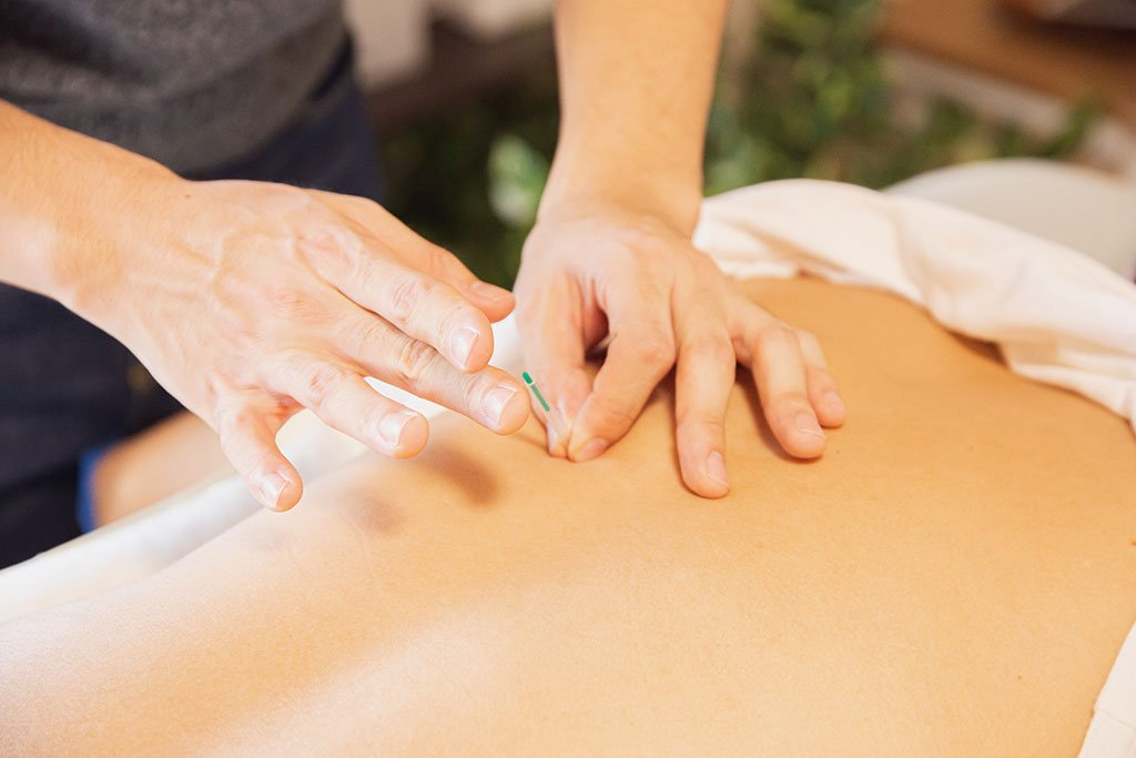 Main image for Acupuncture and Its Benefits